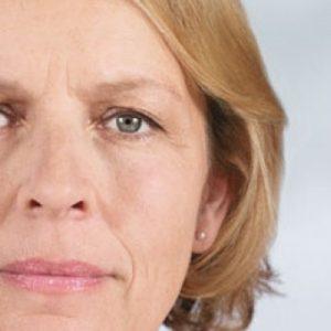 brow lift 3 - Botox