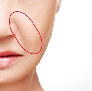nasolabial folds - dermal fillers